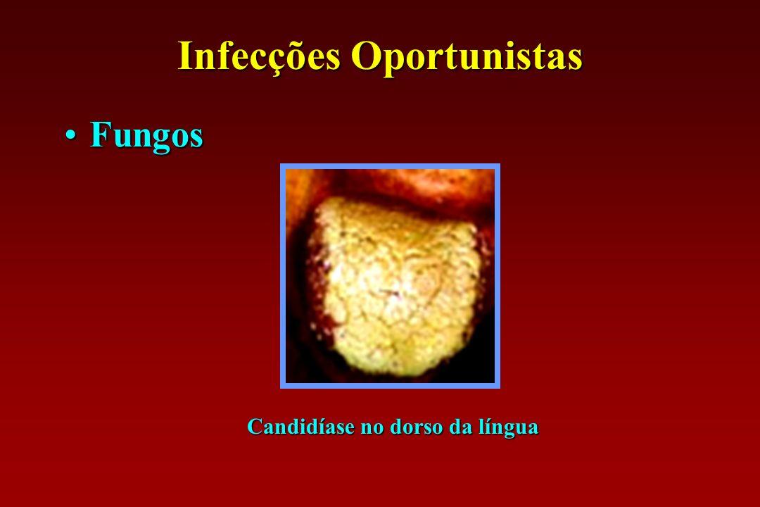 Infecções Oportunistas Candidíase no dorso da língua