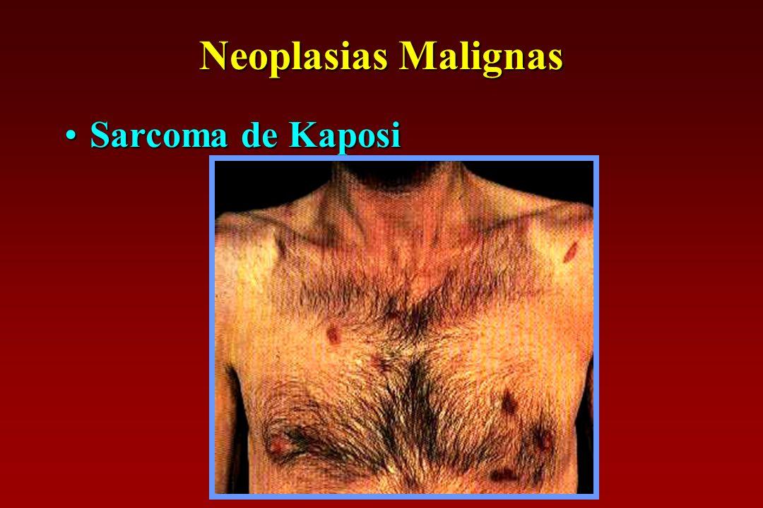 Neoplasias Malignas Sarcoma de Kaposi