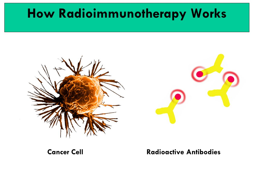 How Radioimmunotherapy Works