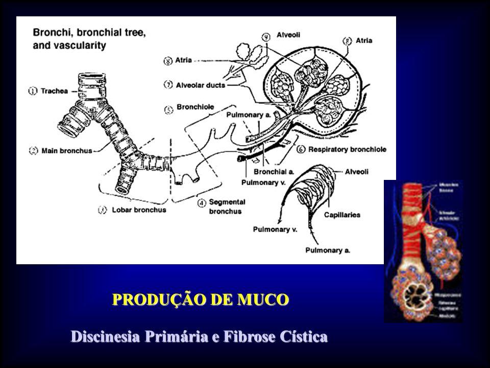 PRODUÇÃO DE MUCO Discinesia Primária e Fibrose Cística