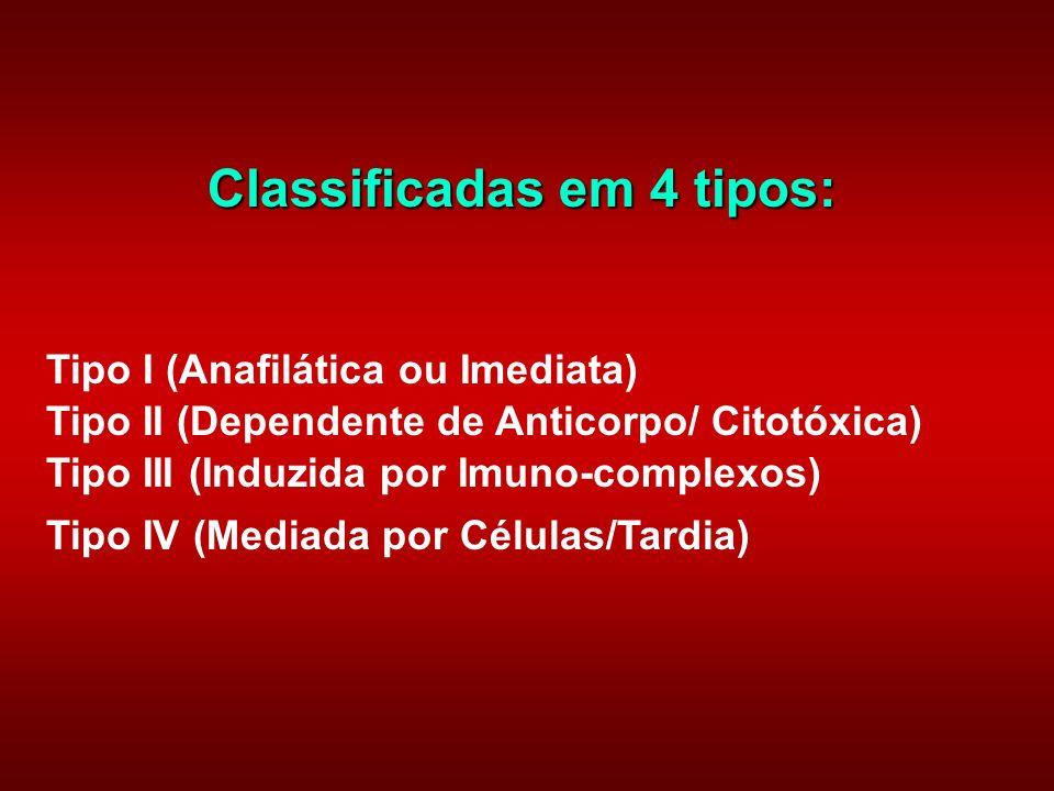 Classificadas em 4 tipos: