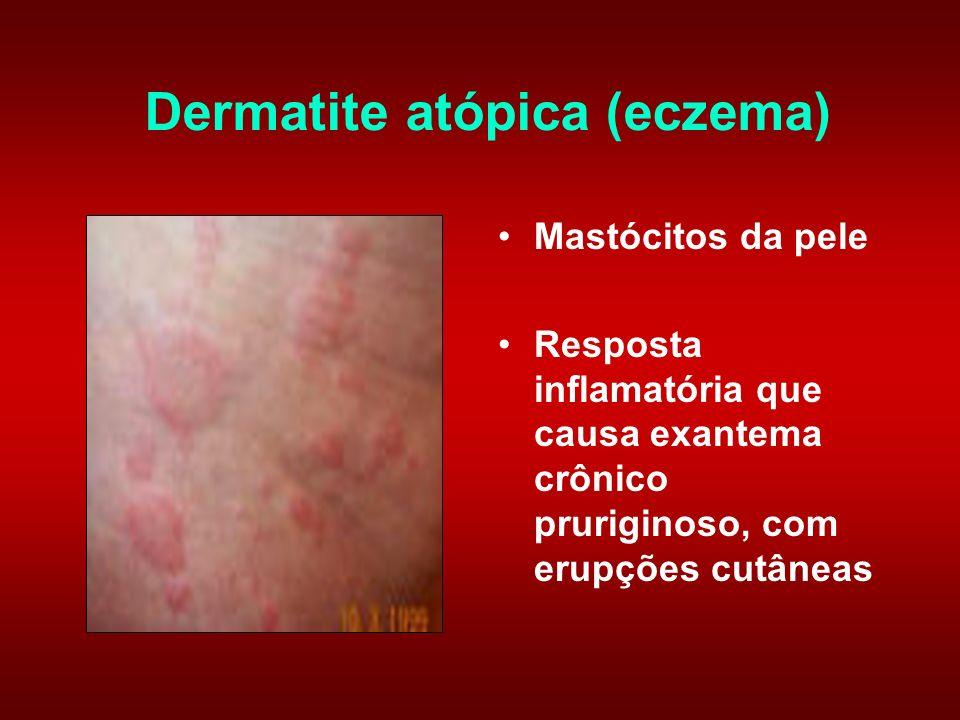 Dermatite atópica (eczema)