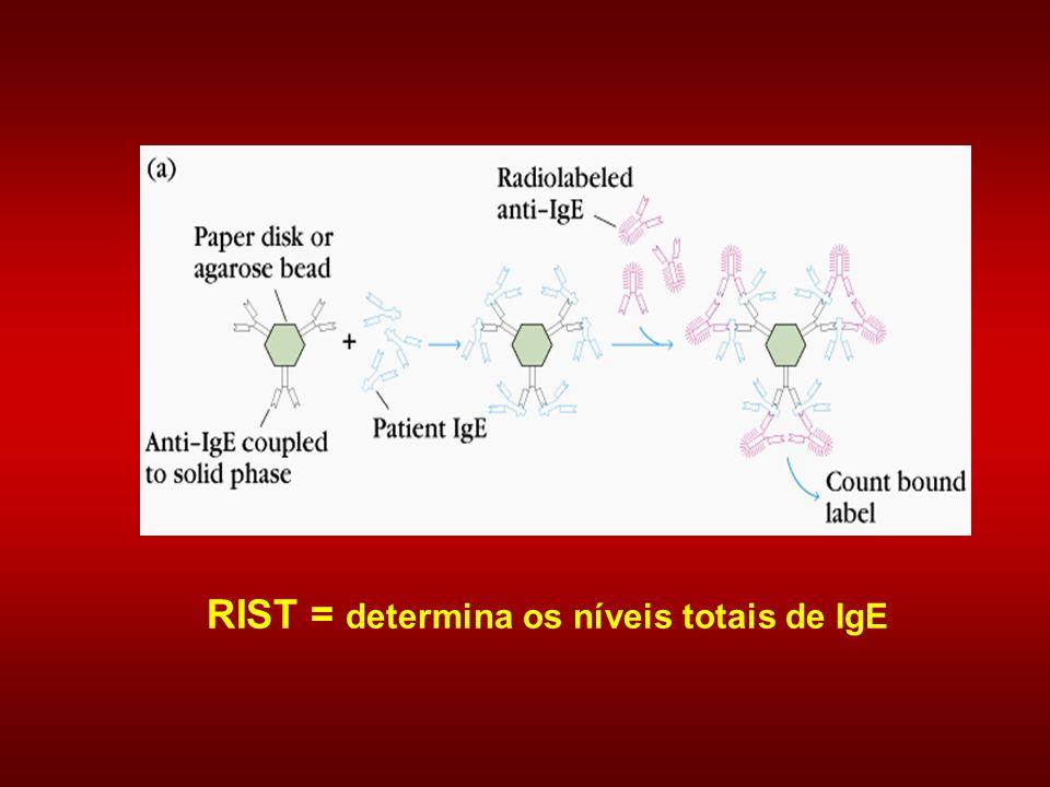 RIST = determina os níveis totais de IgE