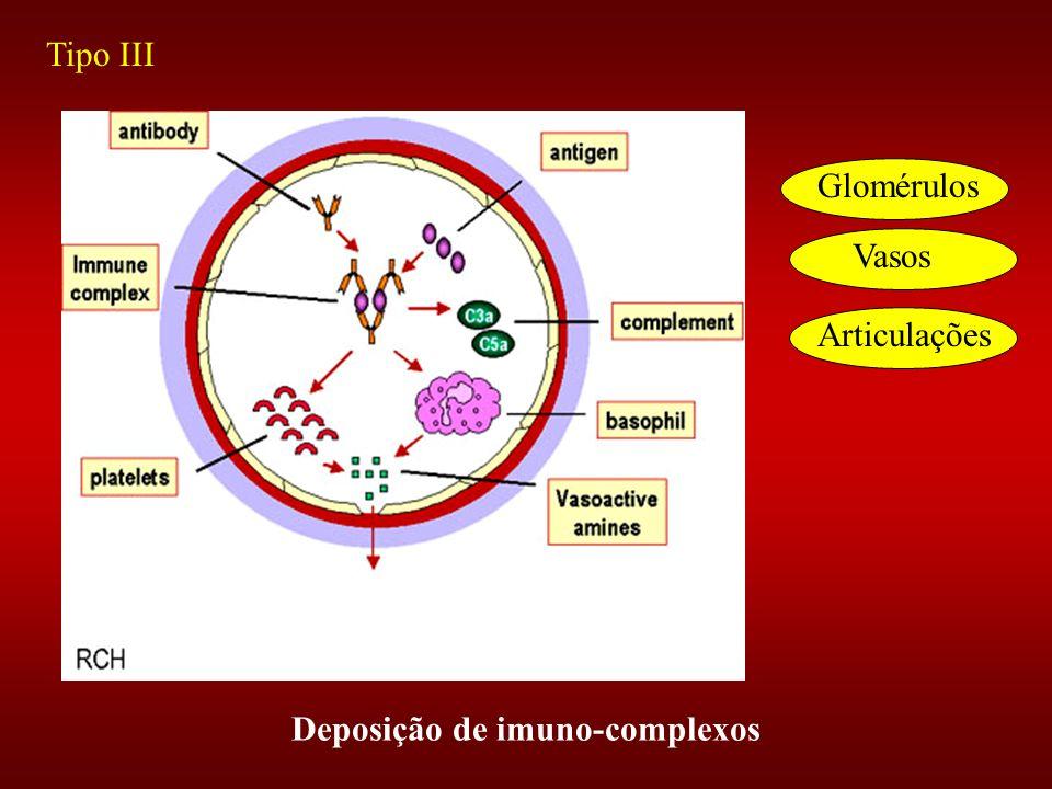 Deposição de imuno-complexos