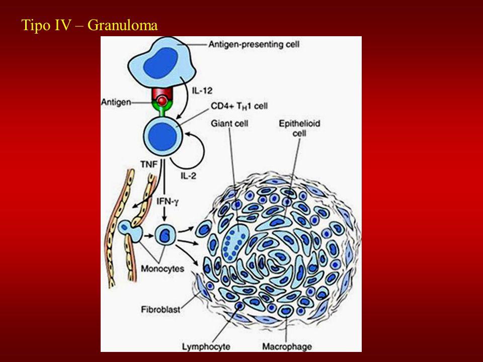 Tipo IV – Granuloma