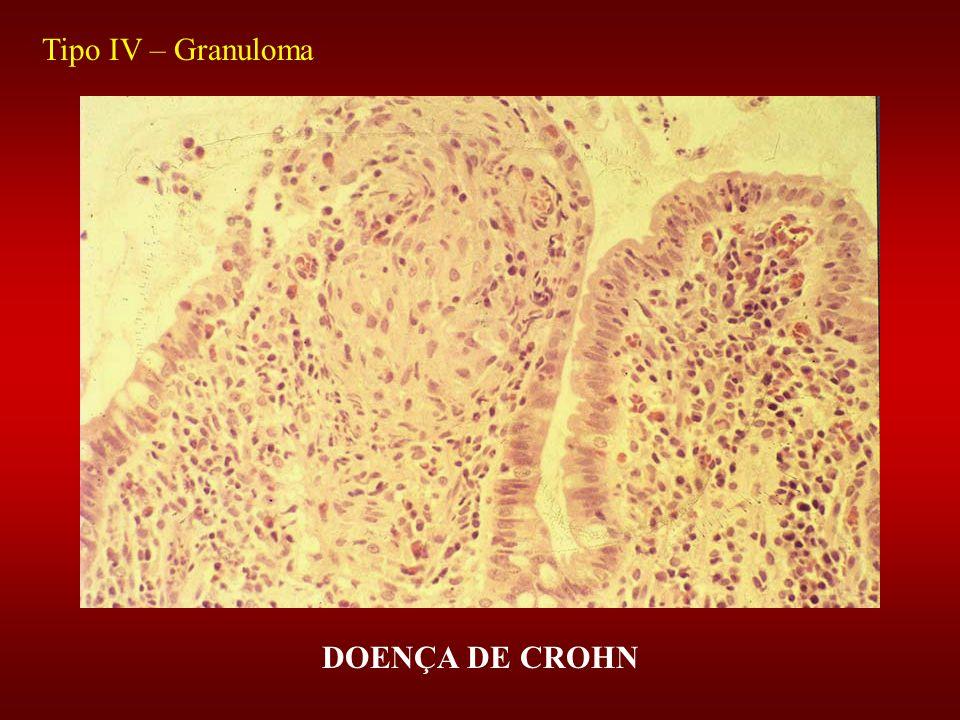 Tipo IV – Granuloma DOENÇA DE CROHN
