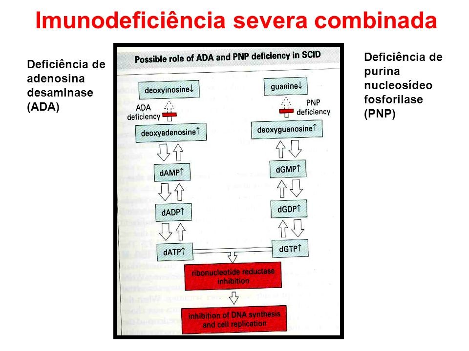 Imunodeficiência severa combinada