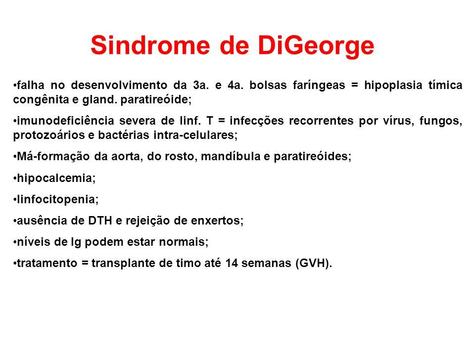 Sindrome de DiGeorge falha no desenvolvimento da 3a. e 4a. bolsas faríngeas = hipoplasia tímica congênita e gland. paratireóide;