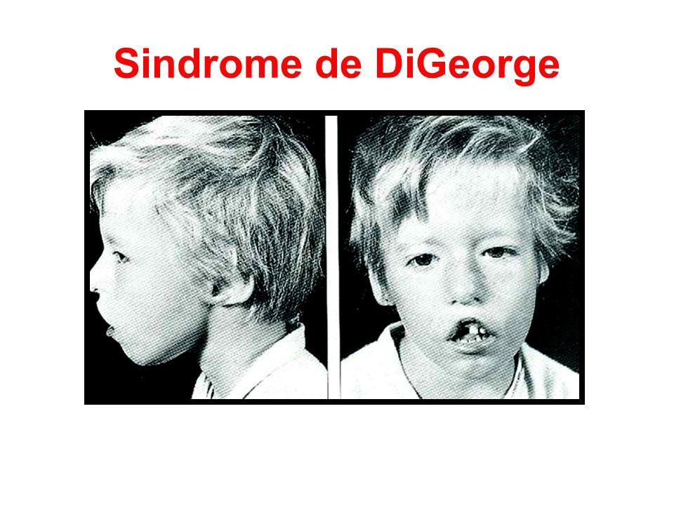 Sindrome de DiGeorge