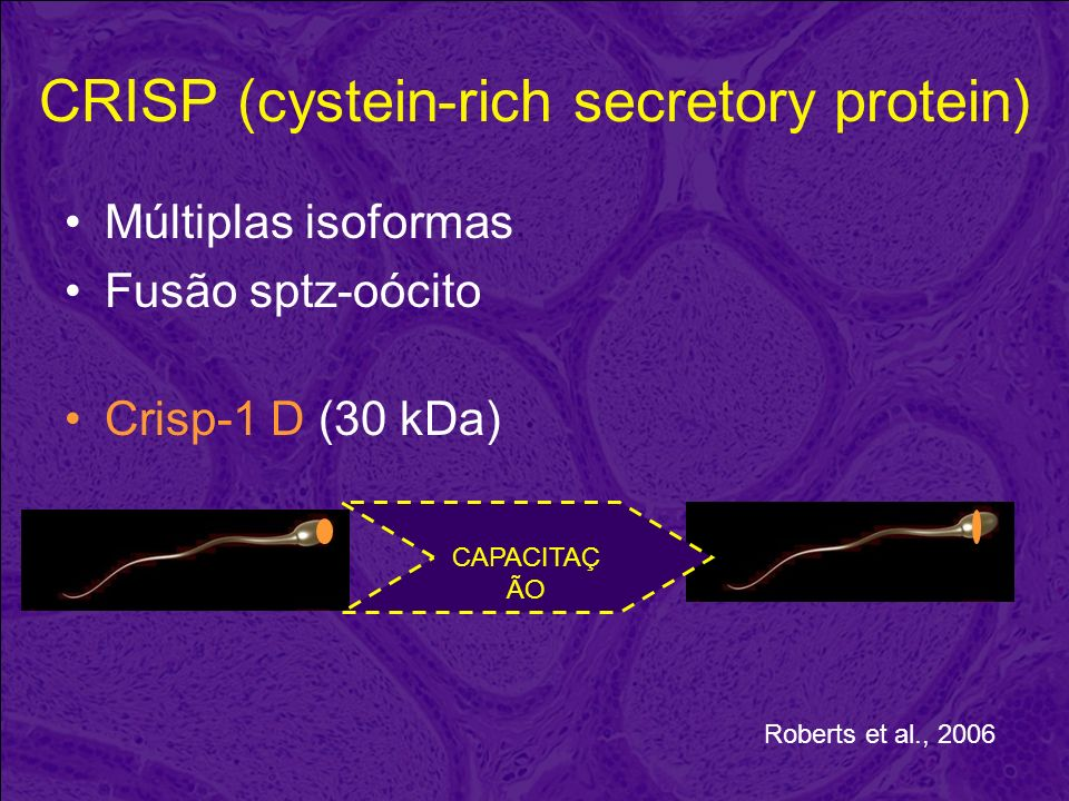 CRISP (cystein-rich secretory protein)