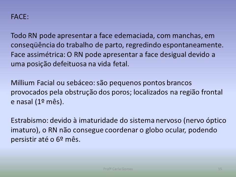 FACE: Todo RN pode apresentar a face edemaciada, com manchas, em conseqüência do trabalho de parto, regredindo espontaneamente.