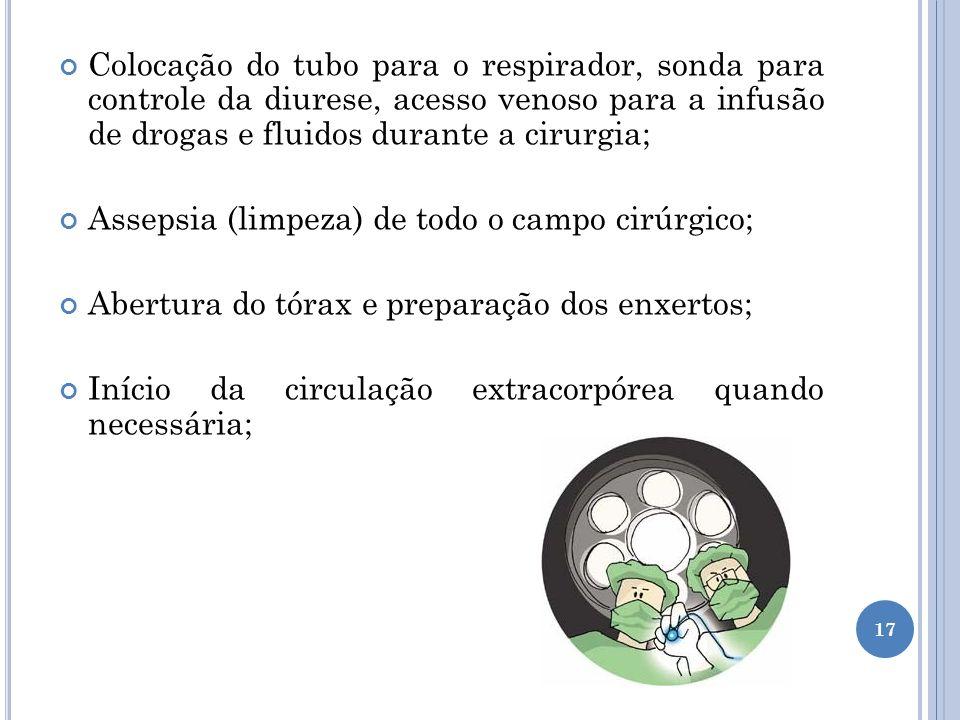 Colocação do tubo para o respirador, sonda para controle da diurese, acesso venoso para a infusão de drogas e fluidos durante a cirurgia;
