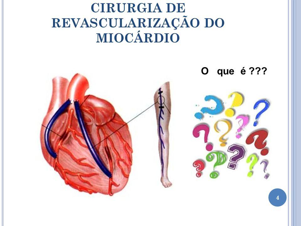 CIRURGIA DE REVASCULARIZAÇÃO DO MIOCÁRDIO