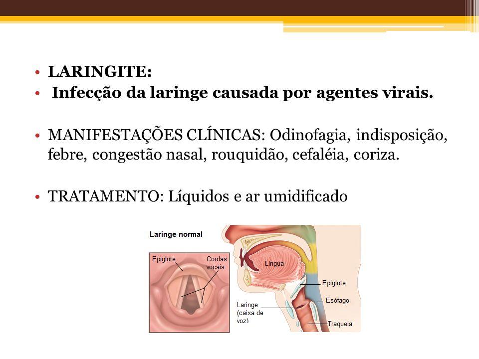 LARINGITE: Infecção da laringe causada por agentes virais.