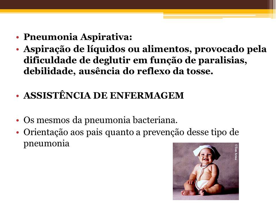Pneumonia Aspirativa: