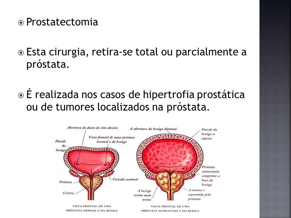 Prostatectomia Esta cirurgia, retira-se total ou parcialmente a próstata.