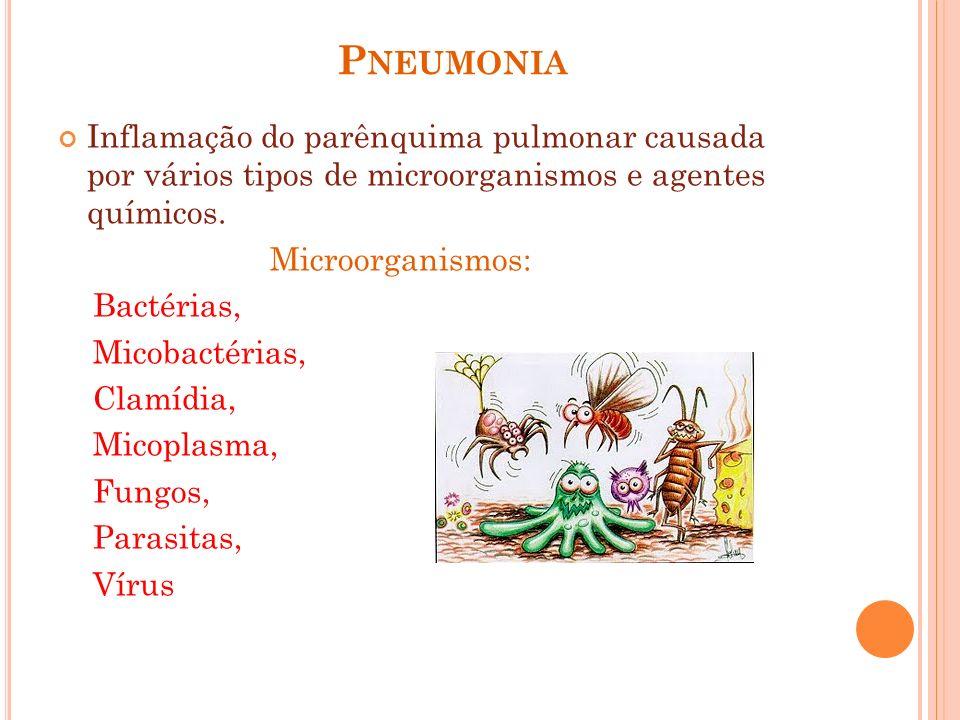 Pneumonia Inflamação do parênquima pulmonar causada por vários tipos de microorganismos e agentes químicos.