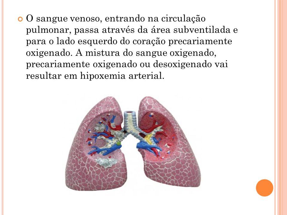 O sangue venoso, entrando na circulação pulmonar, passa através da área subventilada e para o lado esquerdo do coração precariamente oxigenado.