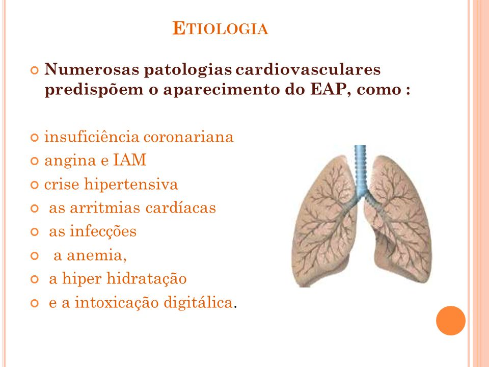 EtiologiaNumerosas patologias cardiovasculares predispõem o aparecimento do EAP, como : insuficiência coronariana.