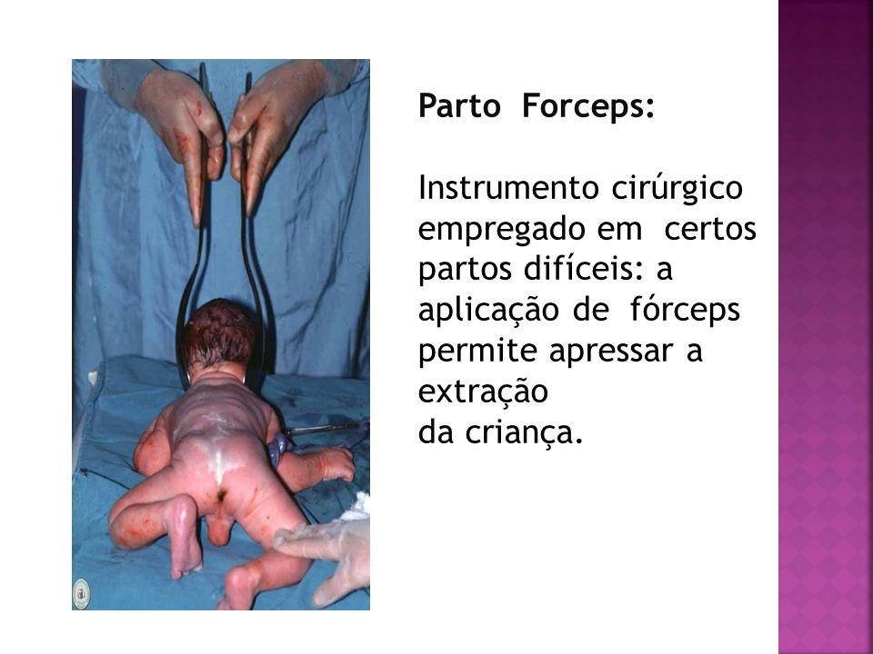 Parto Forceps: Instrumento cirúrgico empregado em certos partos difíceis: a aplicação de fórceps permite apressar a extração.