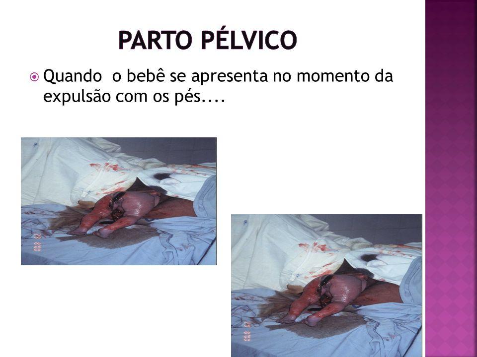 Parto Pélvico Quando o bebê se apresenta no momento da expulsão com os pés....