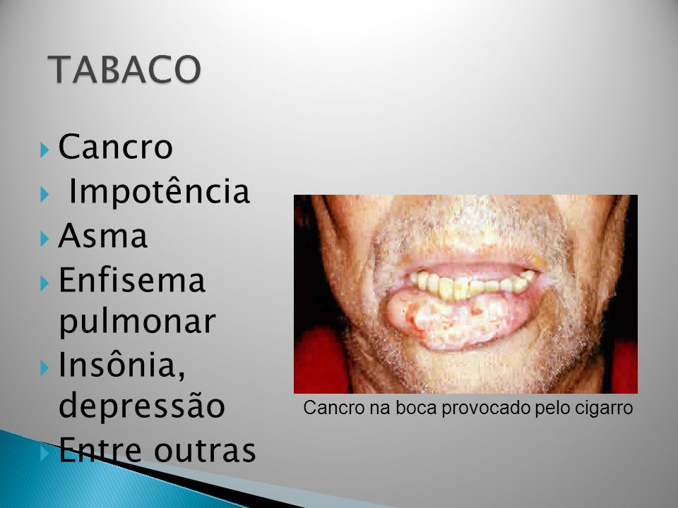 TABACO Cancro Impotência Asma Enfisema pulmonar Insônia, depressão