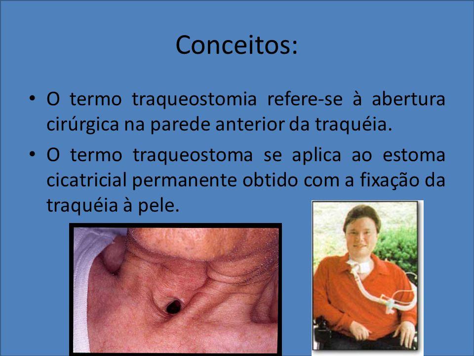 Conceitos: O termo traqueostomia refere-se à abertura cirúrgica na parede anterior da traquéia.