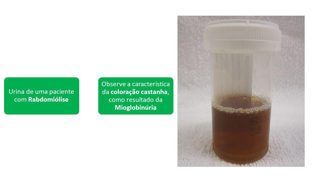 Urina de uma paciente com Rabdomiólise