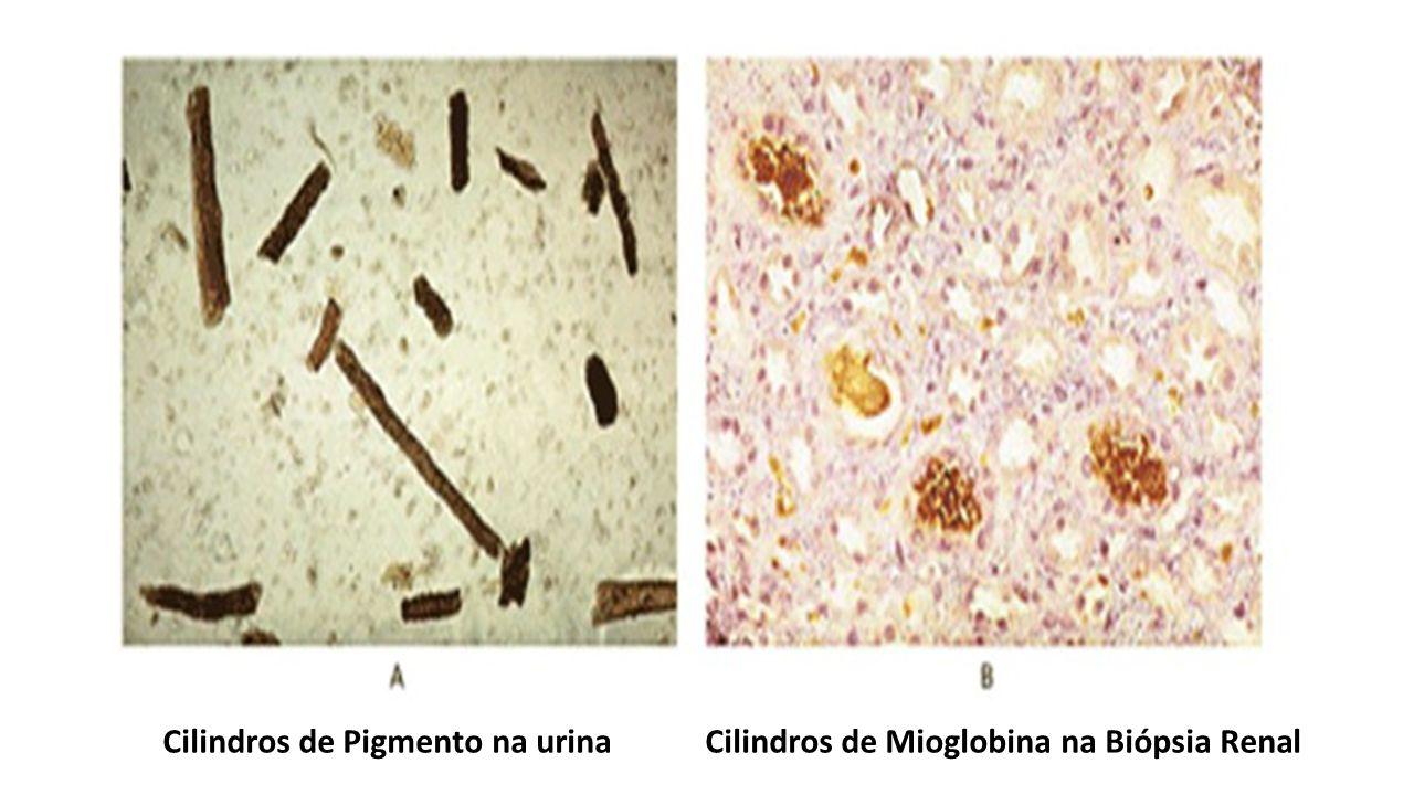 Cilindros de Pigmento na urina