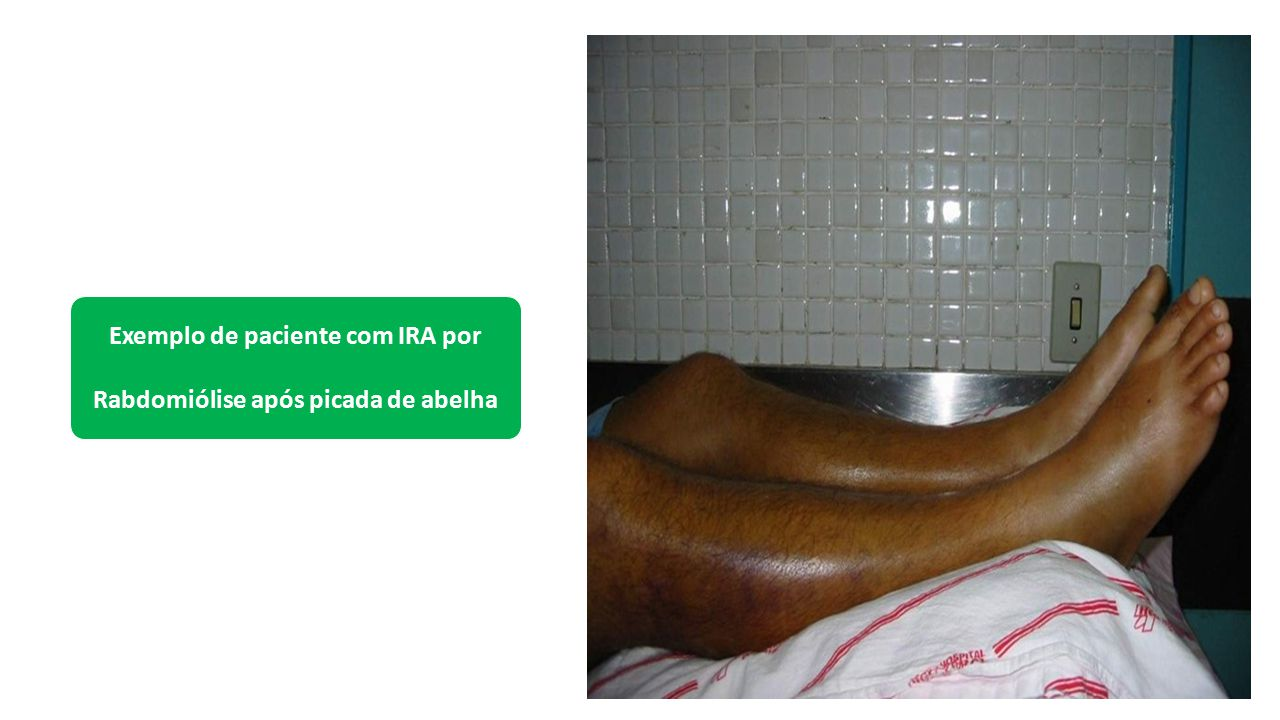 Exemplo de paciente com IRA por Rabdomiólise após picada de abelha