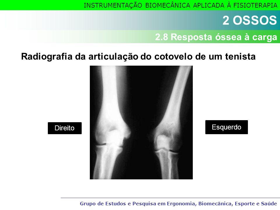 Radiografia da articulação do cotovelo de um tenista