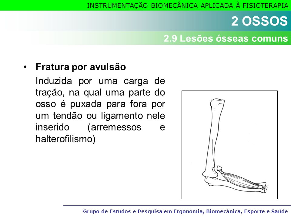 2 OSSOS 2.9 Lesões ósseas comuns Fratura por avulsão