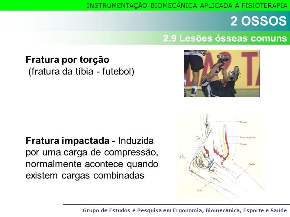 2 OSSOS 2.9 Lesões ósseas comuns Fratura por torção