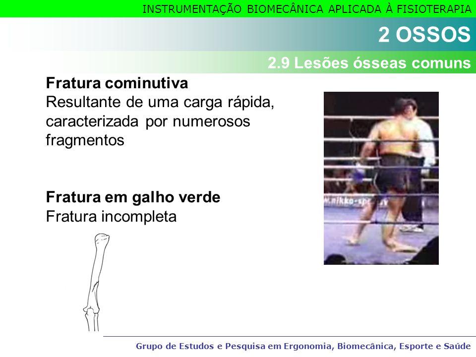 2 OSSOS Fratura cominutiva 2.9 Lesões ósseas comuns