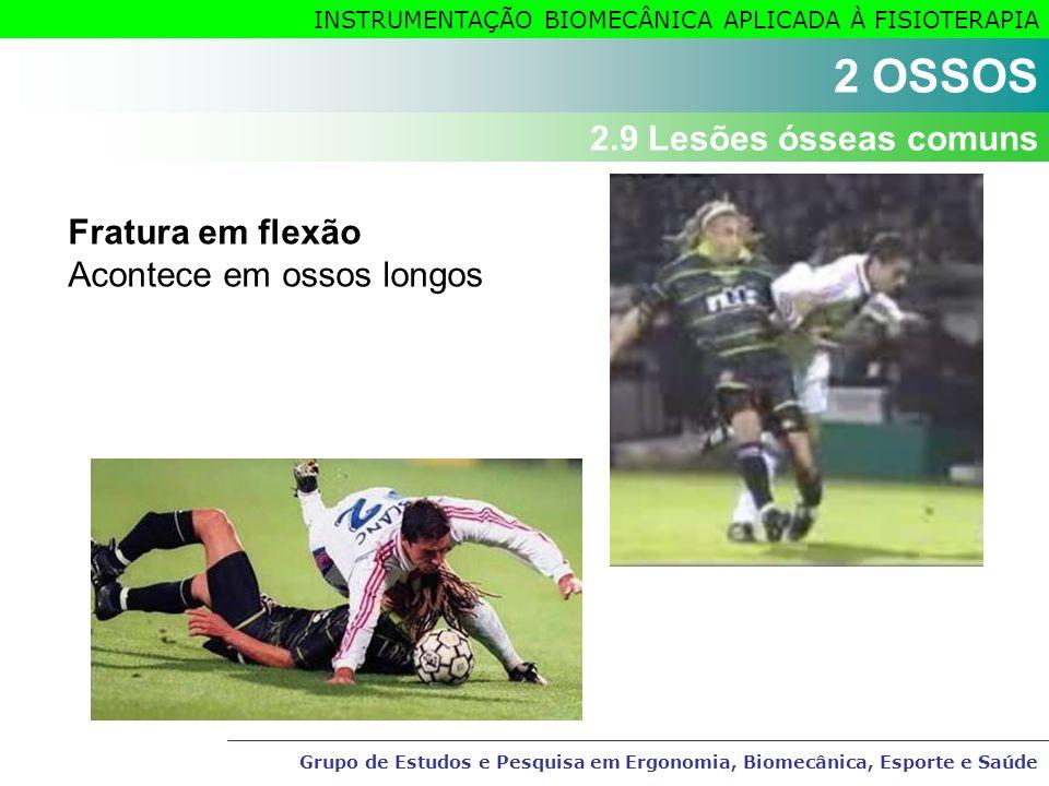2 OSSOS 2.9 Lesões ósseas comuns Fratura em flexão