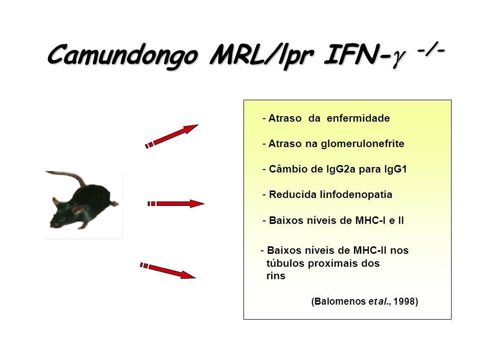 Camundongo MRL/lpr IFN- -/-