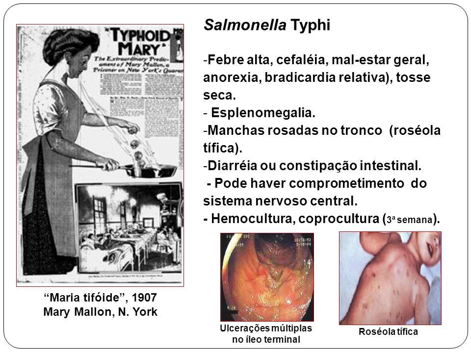 Ulcerações múltiplas no íleo terminal