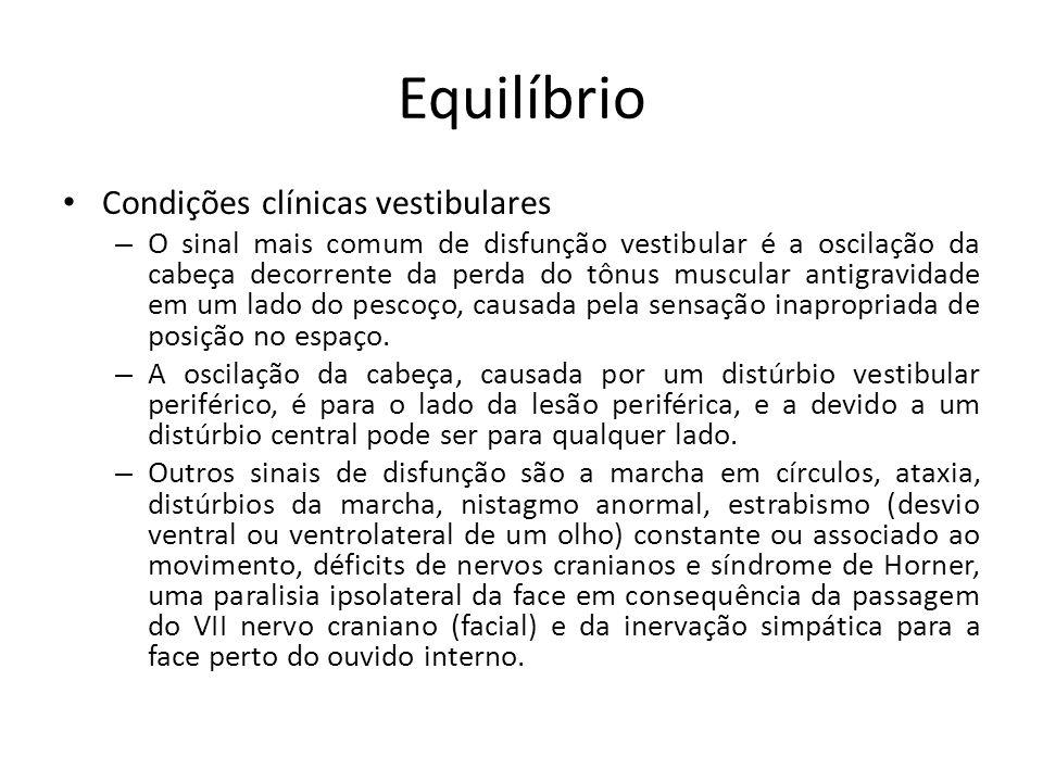 Equilíbrio Condições clínicas vestibulares