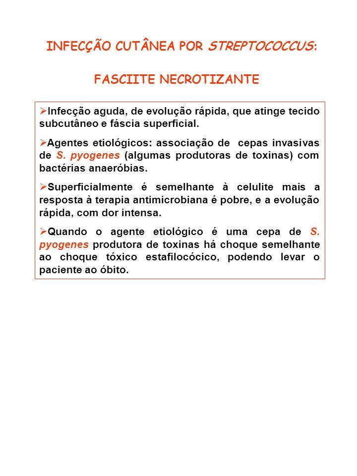 INFECÇÃO CUTÂNEA POR STREPTOCOCCUS: FASCIITE NECROTIZANTE