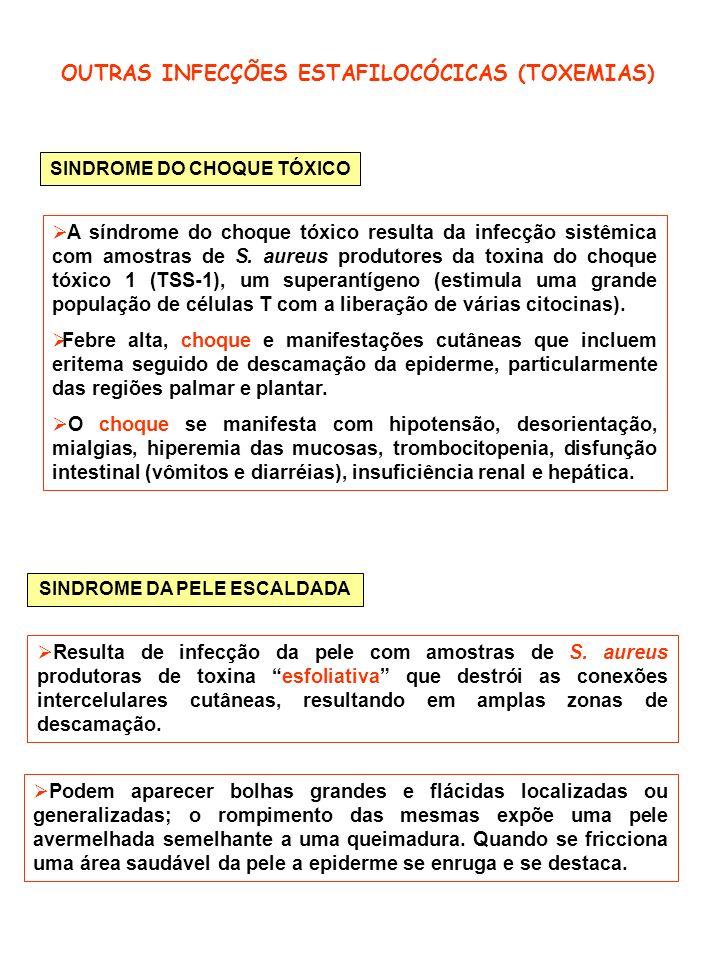 OUTRAS INFECÇÕES ESTAFILOCÓCICAS (TOXEMIAS)