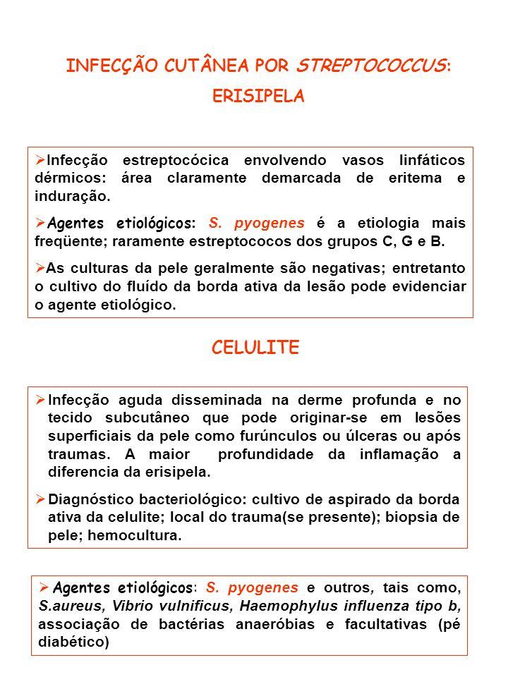 INFECÇÃO CUTÂNEA POR STREPTOCOCCUS: