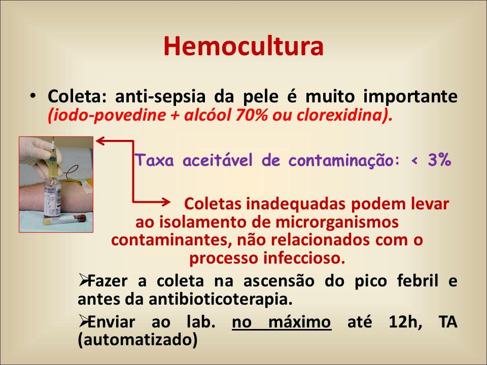 Hemocultura Coleta: anti-sepsia da pele é muito importante (iodo-povedine + alcóol 70% ou clorexidina).