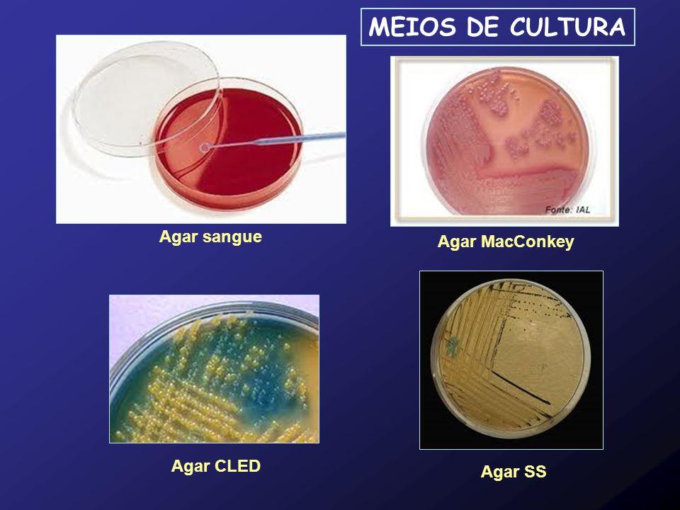 MEIOS DE CULTURA Agar sangue Agar MacConkey Agar CLED Agar SS