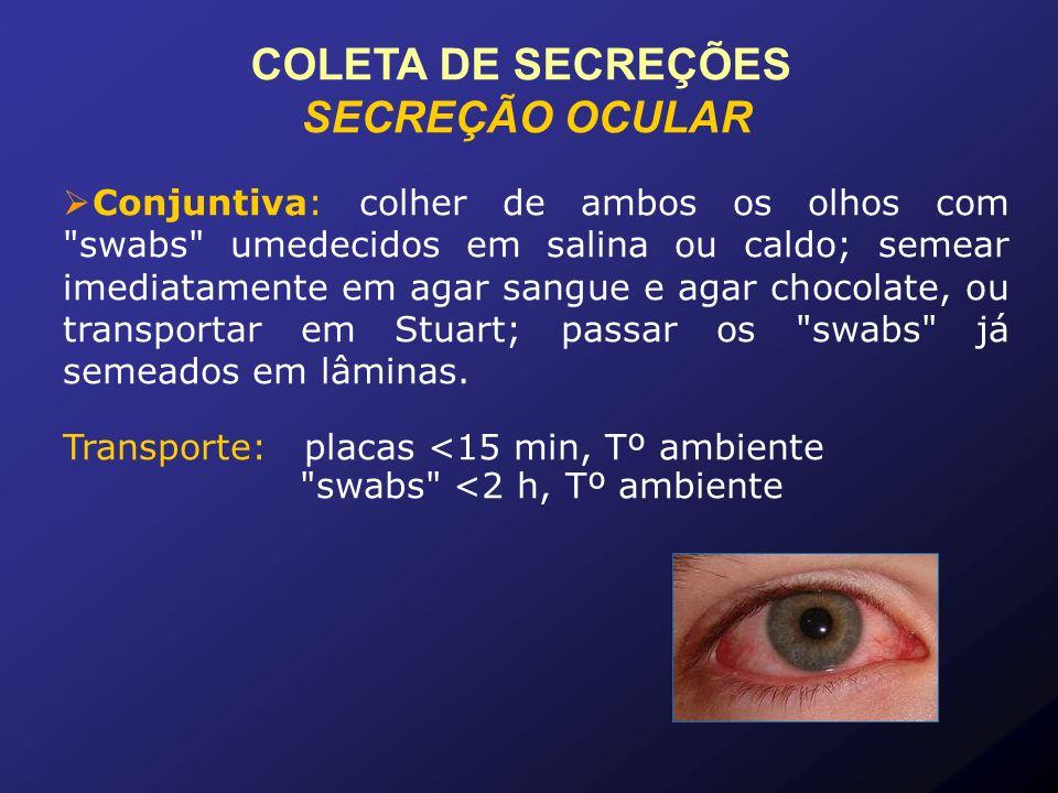 COLETA DE SECREÇÕES SECREÇÃO OCULAR