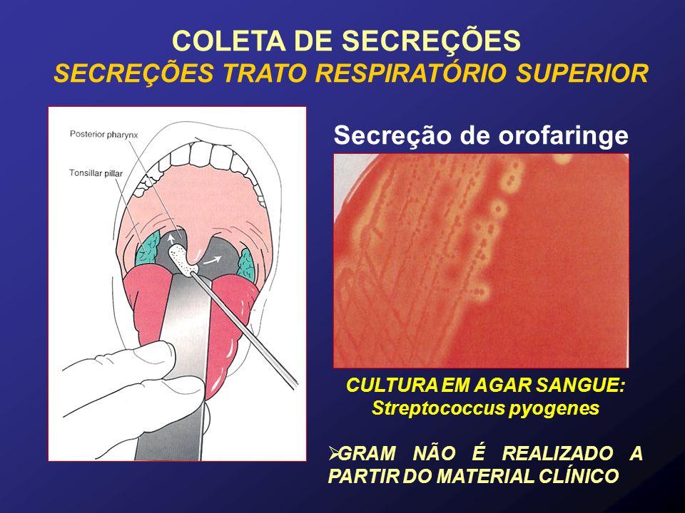 COLETA DE SECREÇÕES Secreção de orofaringe