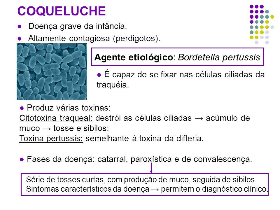 Agente etiológico: Bordetella pertussis