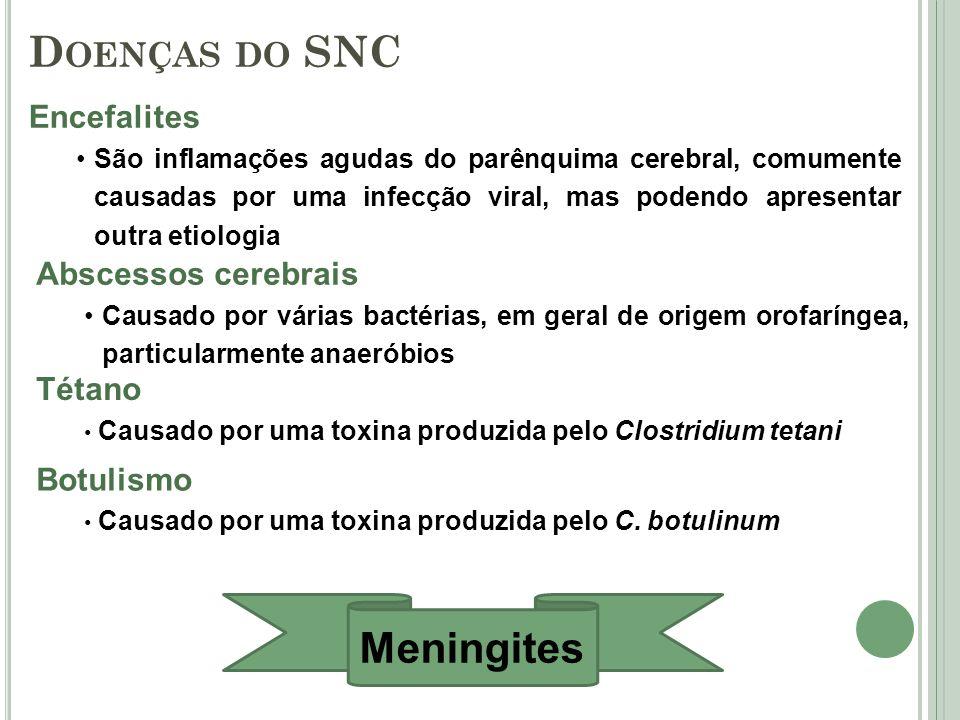 Doenças do SNC Meningites Encefalites Abscessos cerebrais Tétano
