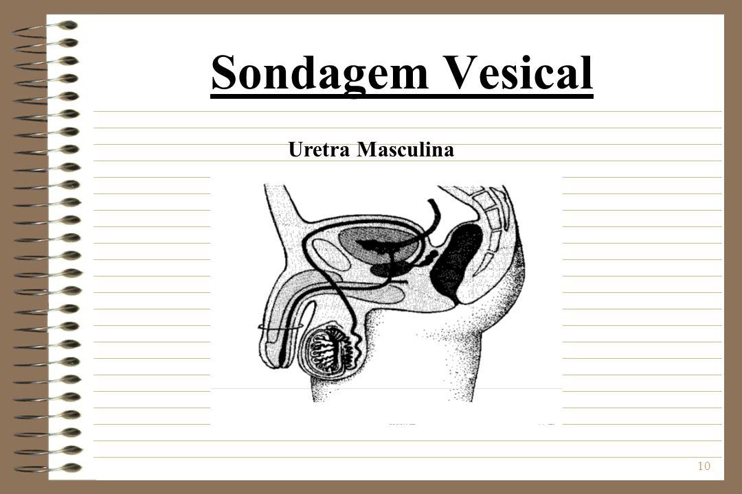 Sondagem Vesical Uretra Masculina
