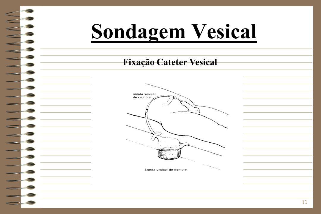 Fixação Cateter Vesical