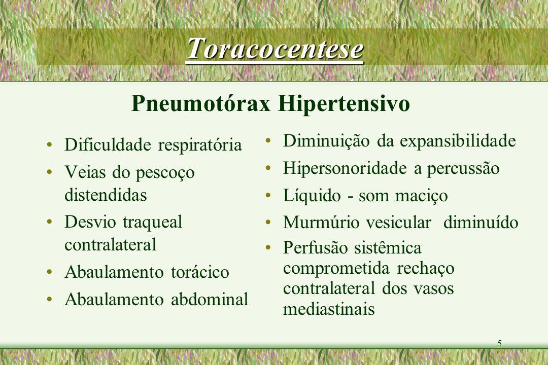Toracocentese Pneumotórax Hipertensivo Diminuição da expansibilidade